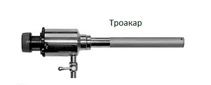 Операция по удалению простаты лапароскопия