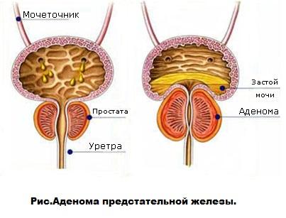 Степени аденомы простаты