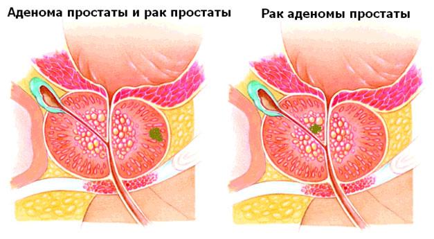 Гемотест анализ на простатит