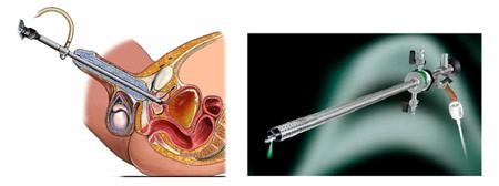 Остеохондроз грудного отдела позвоночника 1, 2, 3 степени