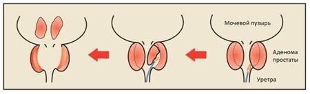 Простатиты у мужчин лечение пластырь