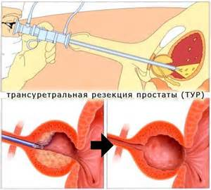 Аденокарцинома предстательной железы ацинарная