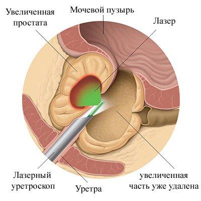 Гиперплазия предстательной железы с диффузными изменениями паренхимы