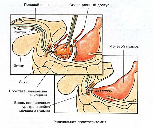Настойка коры осины от простатита и отзывы