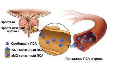 Температура при раке простаты 4 степени