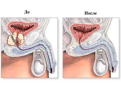 Увеличена простата лекарство