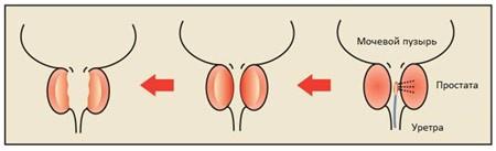 Трипсин от простатита