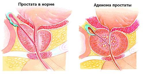 Когда можно заниматься сексом после операции по удалению аденомы простаты