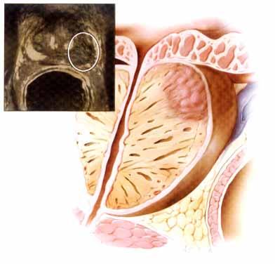 Простомол может от простатита