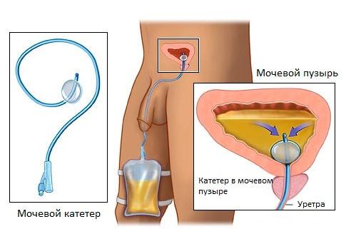 Методики лечения хронического простатита